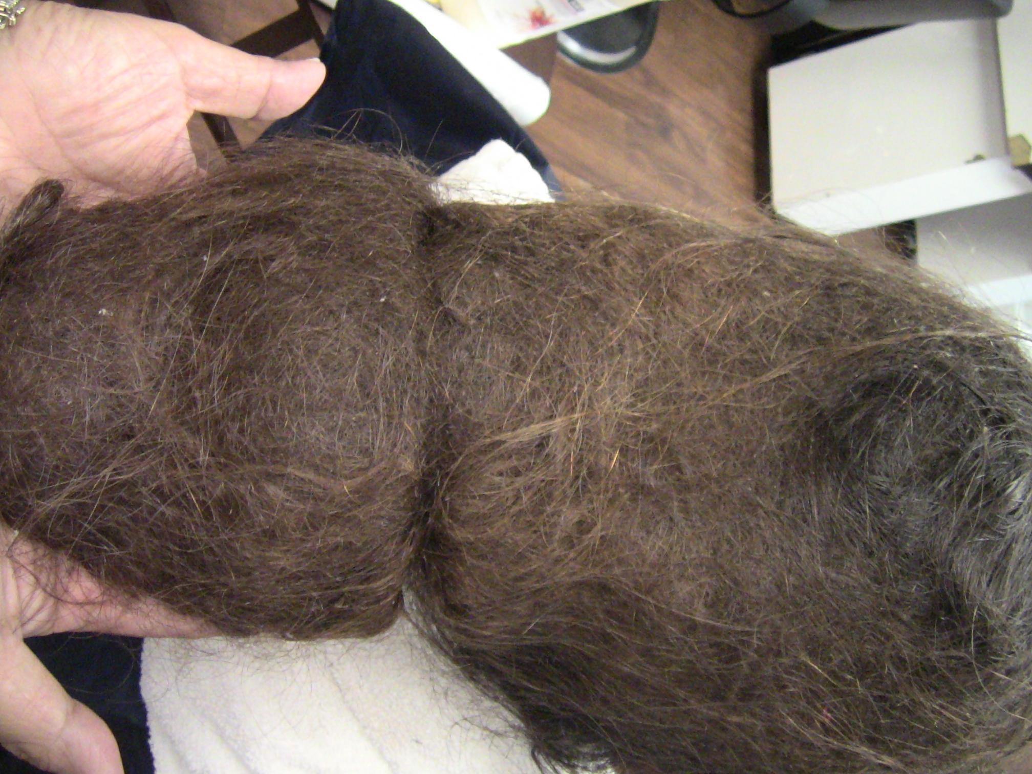 Спутанные Волосы Заболевание