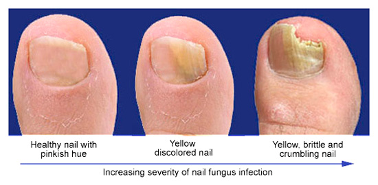 Fungal Nail Treatment 1 Toe Summary